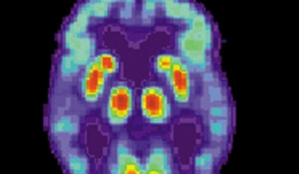 Scientists Detect Copper and Magnetic Iron Present in the Brains of Alzheimer's Sufferers
