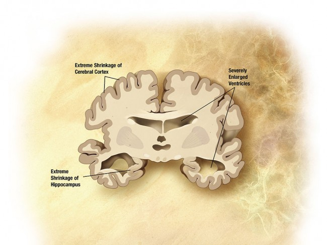 Monkey Brains Research Might Lead to New Drugs for Possible Alzheimer Cure
