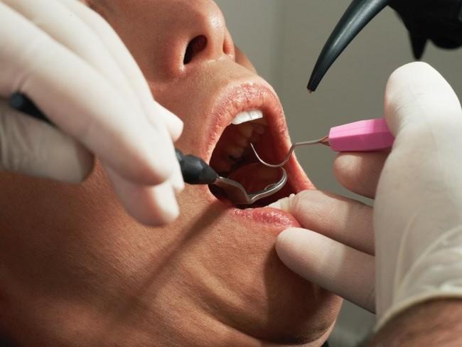 Debunking Myths about Dental Implants